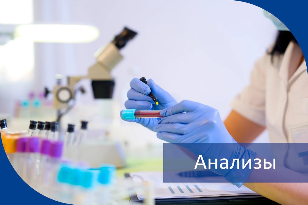 Анализы (лабораторная диагностика)